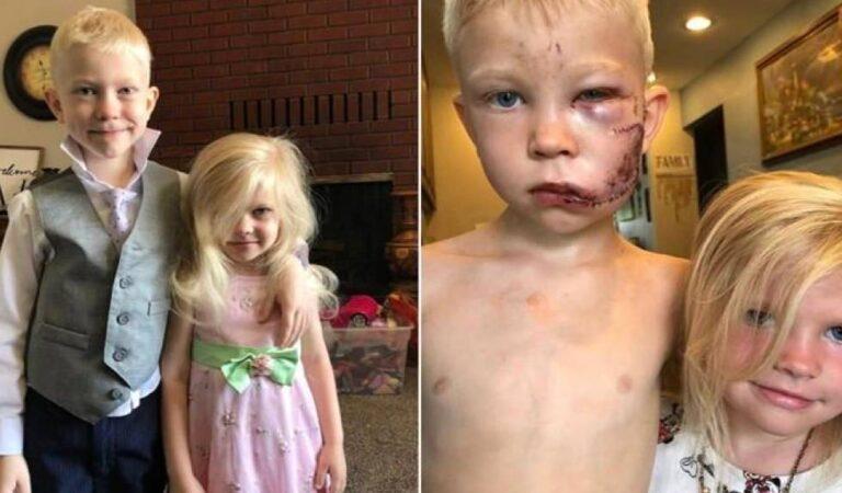 Pequeño salvó a su hermana del ataque de un perro y le costó 90 puntos de sutura
